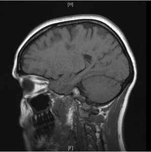 Sagital view shows on T1 WI big holes in the white matter indicating demyelinating lesions