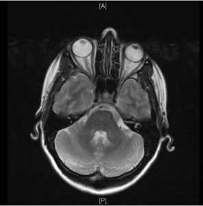 T2WI showing nice appearance of acute optic neuritis on the left side.