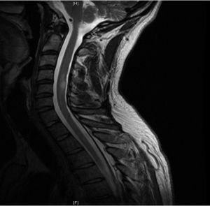 T2WI showing high signal changes in the cervical spine very much consistent with demyelination.