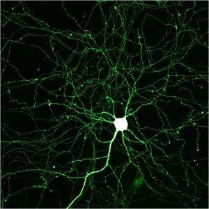 Electrified neuron